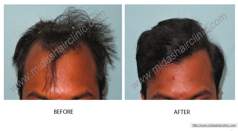 FUE Hair Transplant in Bangalore