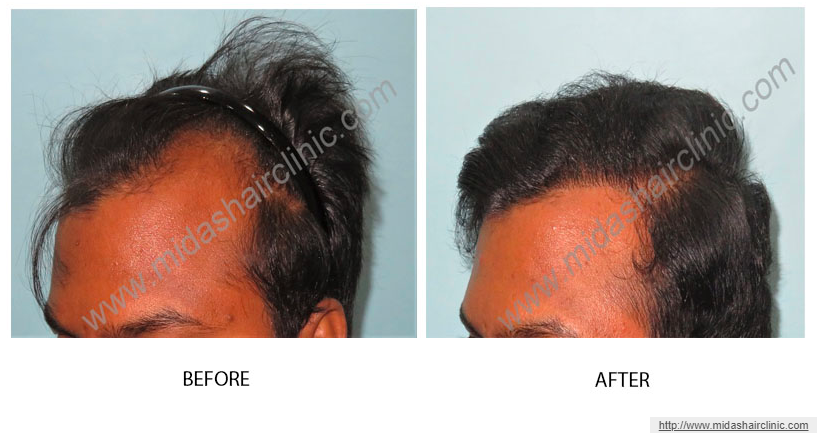 Cost of FUE hair transplant in Bangalore