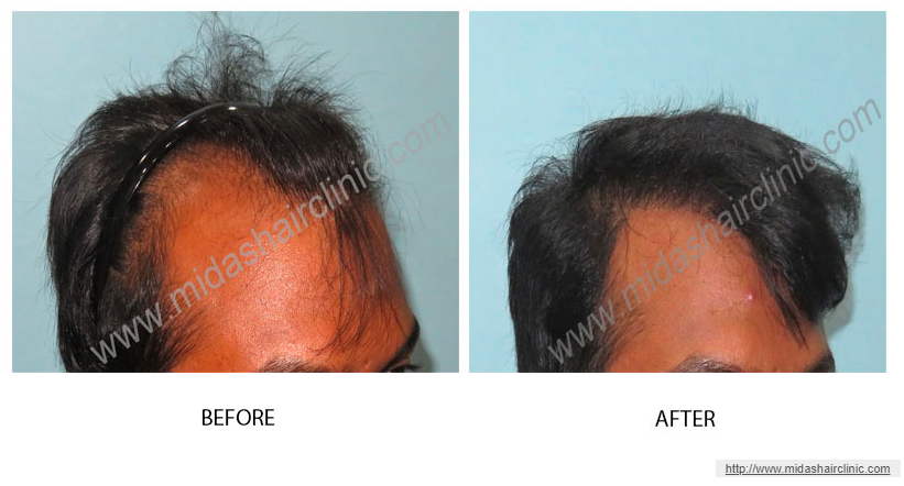 Best FUE Hair Transplant Clinic in Bangalore