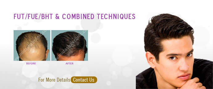 Midas hair clinic fue hair transplant in bangalore lllt in hair treatments pmusecretfo Image collections